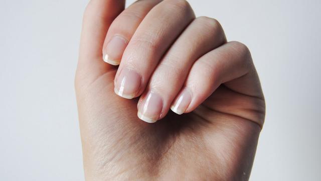 8 Kondisi Kuku Ini Tunjukkan Masalah Kesehatan Tubuh